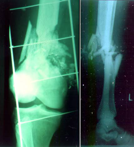 THE X-RAYS SHOW TWO EXAMPLES OF THE COMPLEX FRACTURES THAT ARE CAUSED BY HIGH ENERGY BULLET WOUNDS SUCH AS BULLETS OR SHELL FRAGMENTS.