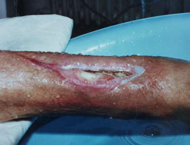 SEVERE CHRONIC INFECTION OF BONE AND SOFT TISSUES OF THE LOWER LEG AFTER SHELL FRAGMENT INJURY.